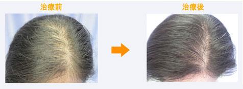 40代女性びまん性脱毛症治療症例