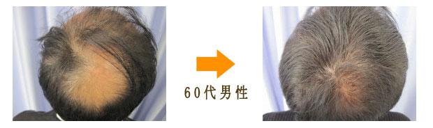 増毛治療60代男性