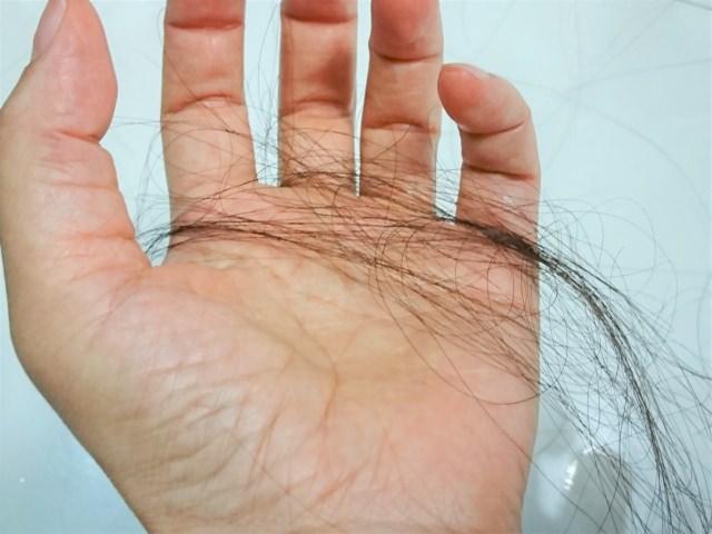 ストレスは薄毛の主要な原因のひとつ