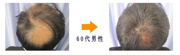 薄毛症例画像1・60代男性