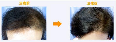60代女性びまん性脱毛症治療症例