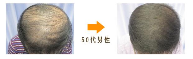 50代男性AGA治療び漫性脱毛症治療症例