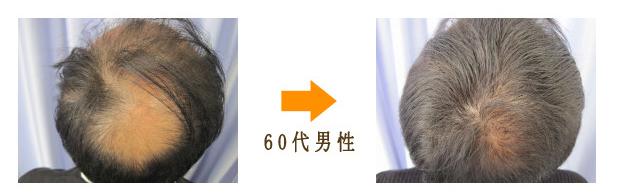 60代男性AGA治療びまん性脱毛症治療症例