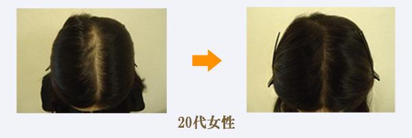20代女性びまん性脱毛症治療症例