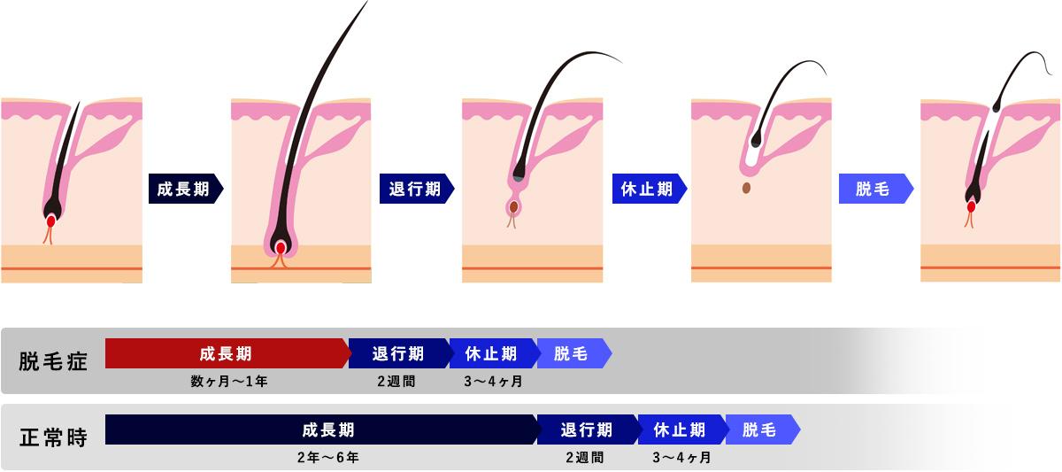 ヘアサイクル毛周期